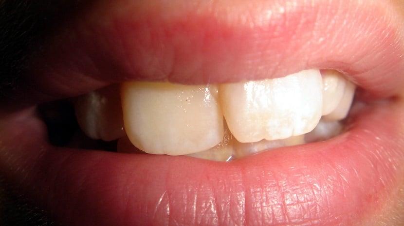 Irrigadores dentales para la limpieza interdental